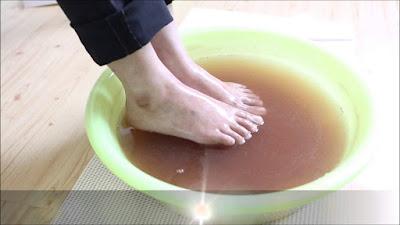 Anda Mengalami Masalah Bau Kaki setelah Menggunakan Sepatu