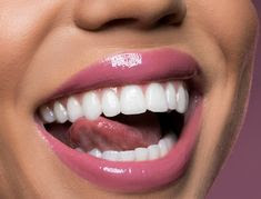 वनीला, बादाम या निम्बू का जूस - Vanila, Almond or Lime Juice for Toothache Relief Chart