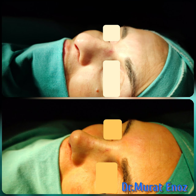 nose reshaping, nose job, Natural rhinoplasty in Istanbul,Natural looking nasal aesthetic surgery