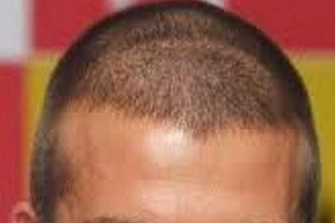 M字ハゲに似合う髪型