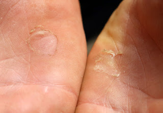 I got blisters on my blisters