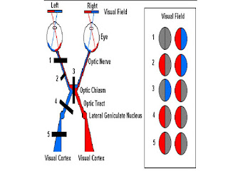 görme lezyonları görme kusurları optik sinir