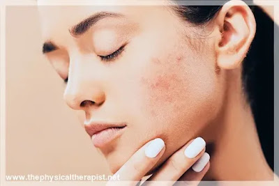 أنواع حبوب الوجه : إليك أفضل الحلول لعلاج مختلف الأنواع