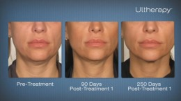 Perfect Body Laser and Aesthetics: Ulthera (Ultherapy) in NY - Neck