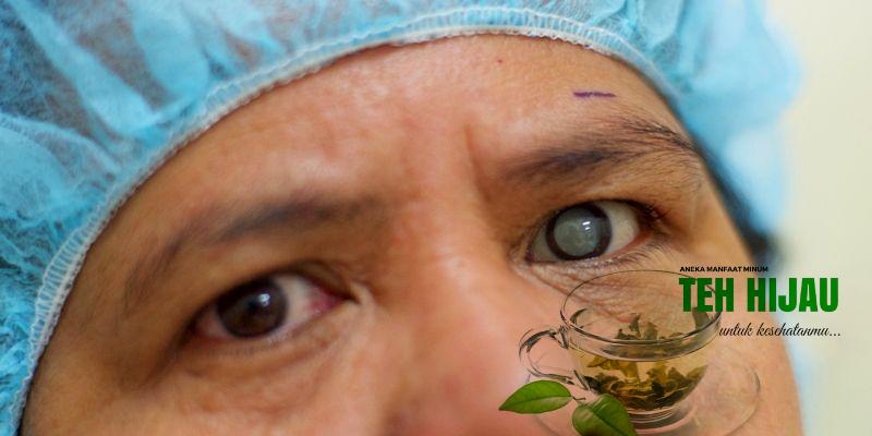 Manfaat Ramuan Teh Hijau Untuk Penyakit Katarak
