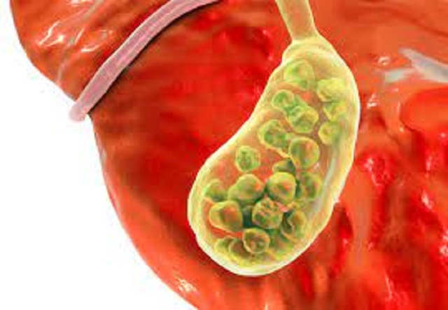 Health tips for what causes gallstones