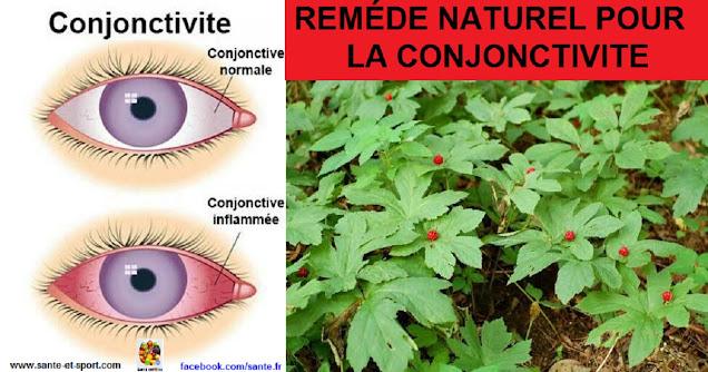REMEDE-NATUREL-CONJONCTIVITE