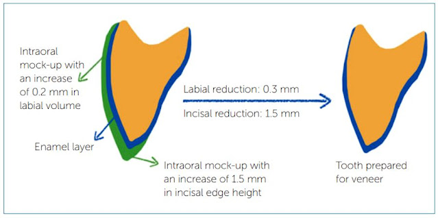 PDF: Tooth preparation for ceramic veneers: when less is more