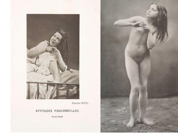 isterie arte plastice nuduri patologie