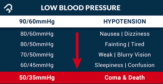 LOW BLOOD PRESSURE(Hypotension), ITS CAUSES AND SYMPTOMS