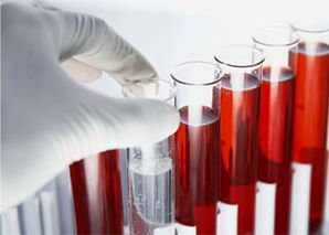 Obat Kencing Darah di Apotik Kimia Farma
