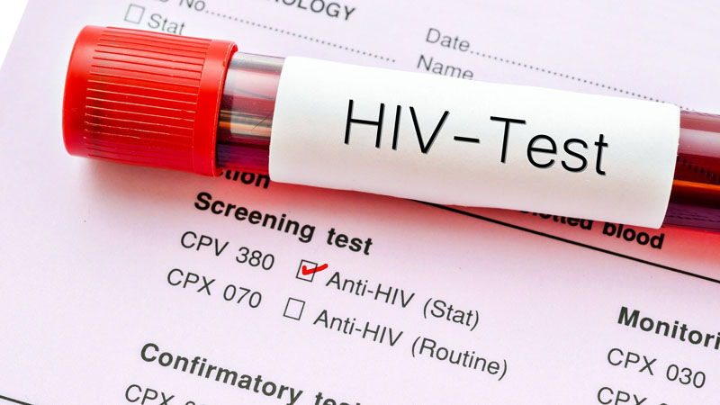 5 Reasons to Get an HIV Test Today
