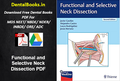 Functional and Selective Neck Dissection PDF
