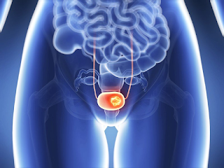 Καρκίνος ουροδόχου κύστης: Ποιοι κινδυνεύουν περισσότερο και πώς εκδηλώνεται