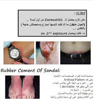 Dermatology by dr sally