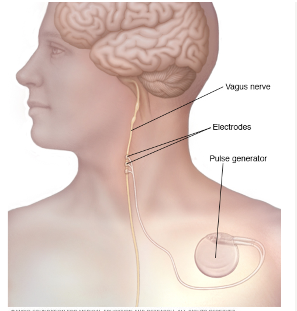 Gastroparesis The Vagus Nerve Stimulator Cranial Electrotherapy In Stimulation An Implanted Pulse Generator And Lead Wire Stimulate Which Leads To Stabilization Of Abnormal Electrical