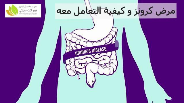 مرض كرونز و كيفية التعامل معه