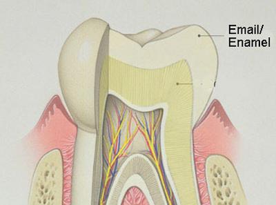 Cara Menghilangkan Gigi Sensitif dan Ngilu (Secara Permanen)
