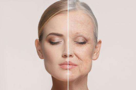 Da khô thiếu đi lớp dầu chống oxi hóa nên có tốc độ lão hóa cao