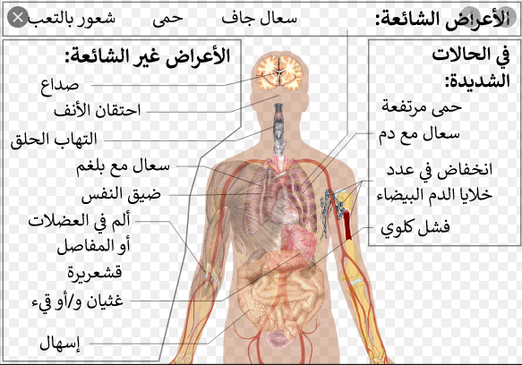 كيف تحمي نفسك من خطر الإصابة بمرض فيروس كورونا