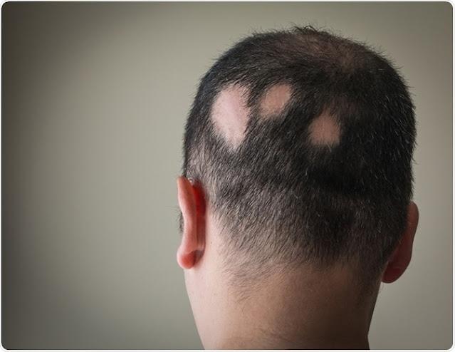 Different forms of alopecia, congenital lopencia, Androgenetic alopecia, Diffuse alopecia, Circumscribed alopecia, doctor is you