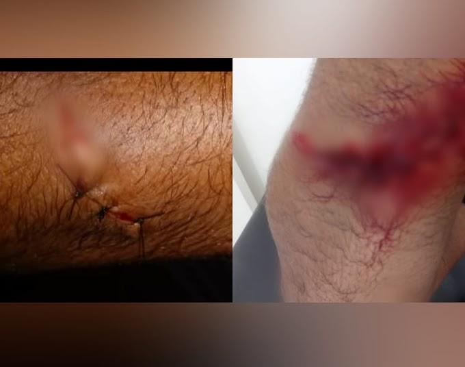 Tumulto em clube de festas de Itaituba acaba deixando feridos; Empresa de segurança se pronuncia sobre o episódio