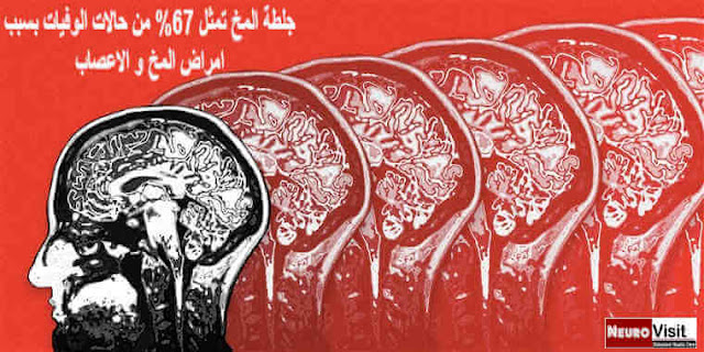 جلطة المخ و الزهايمر