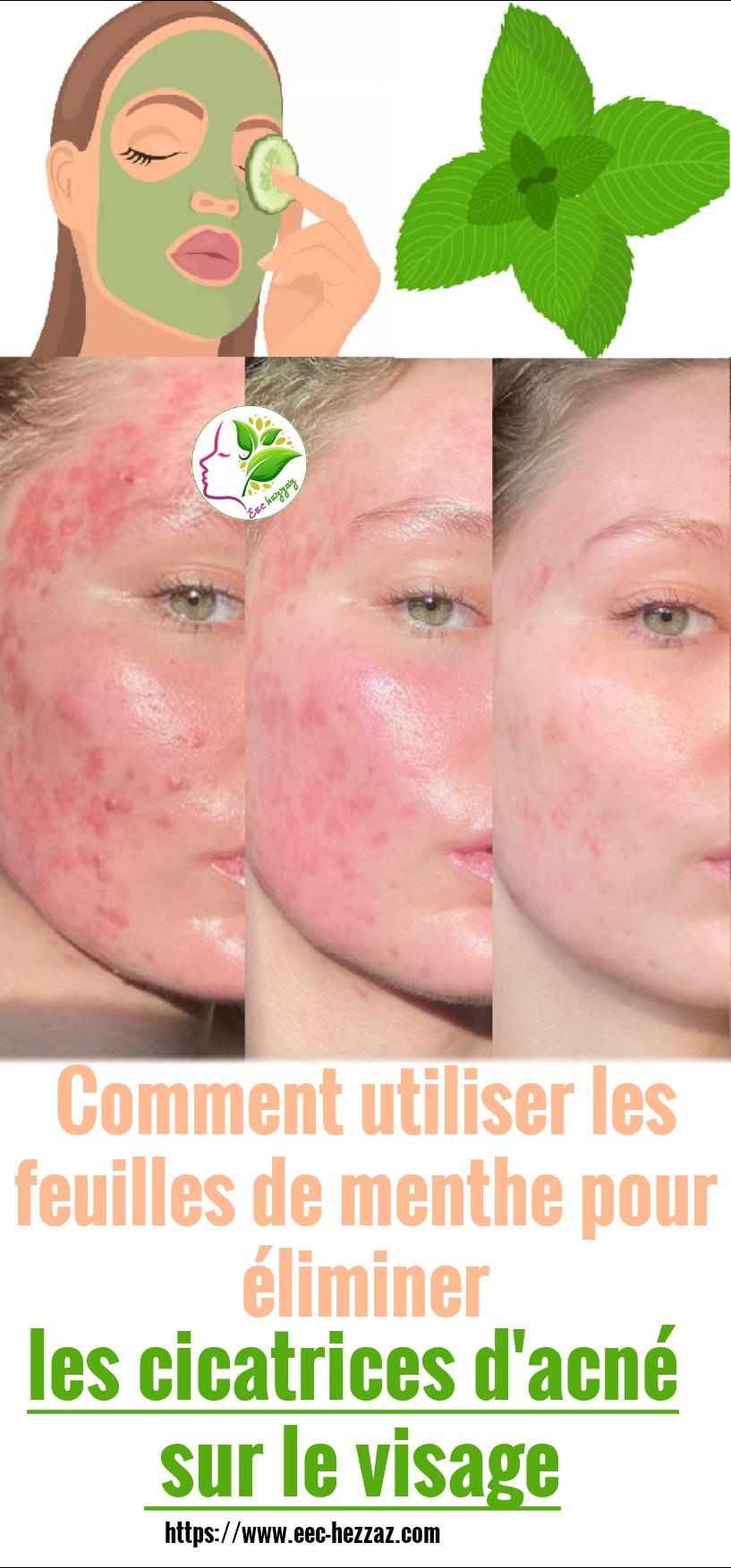 Comment utiliser les feuilles de menthe pour éliminer les cicatrices d'acné sur le visage
