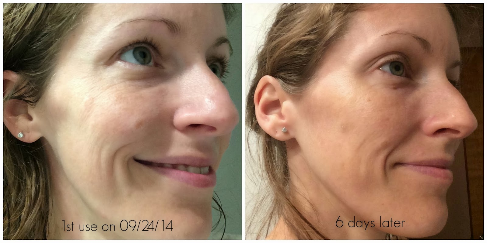 6 days using Anavita Moisturizing Anti-Wrinkle Cream