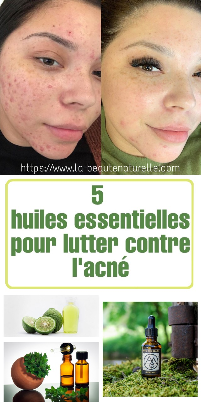 5 huiles essentielles pour lutter contre l'acné
