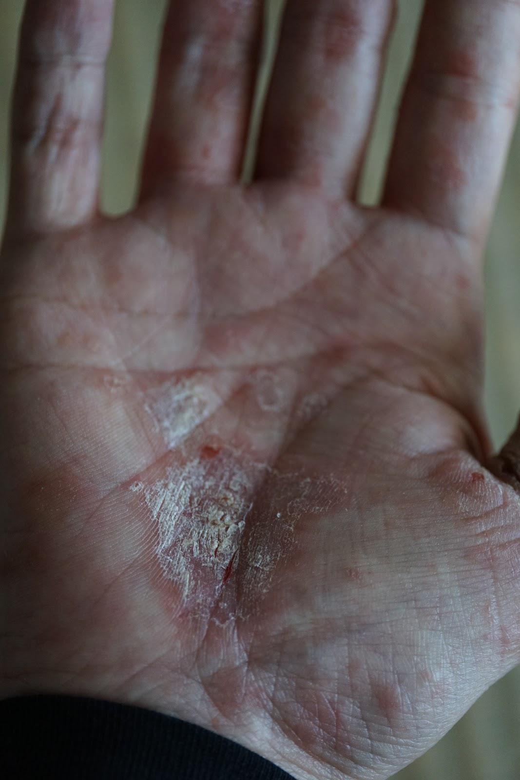 手荒れ/スマホ指荒れの炎症を起こした右の掌