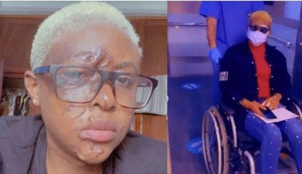 My Neighbors paid people to pour acid on me- Lady Narrates