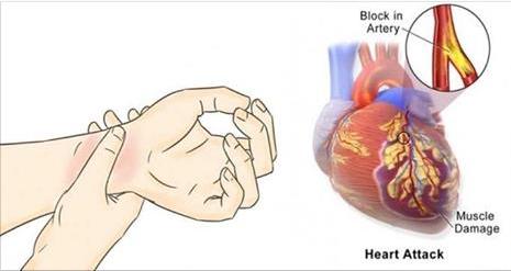 80% des crises cardiaques pourraient être évités si tout le monde faisait ces 5 choses faciles