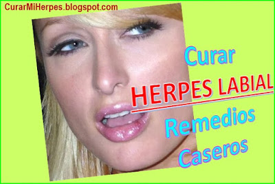 porque-sale-el-herpes-labial-como-deshacerse-curar-remedios-caseros-ParisHilton