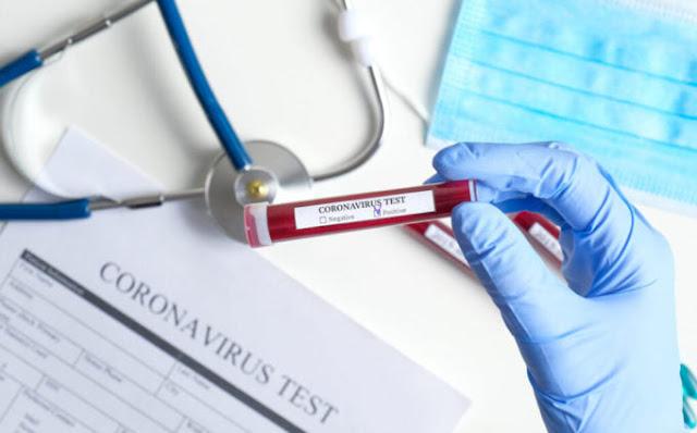Διαγνωστικά τεστ για τον COVID19 από το Νοσοκομείο Άργους και τον Δήμο Άργους Μυκηνών