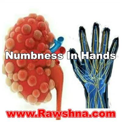 تنميل اليد تعرف على اسبابه وأعراضه المختلفة