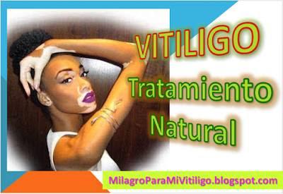 como-se-cura-el-vitiligo-de-manchas-blancas-en-la-piel-tratamientos-caseros