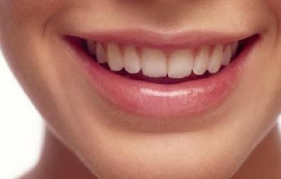 Cara Ampuh Mengatasi Karang Gigi
