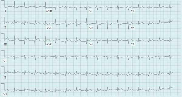 Acute Right Ventricular Failure Complicating Myocardial Infarction