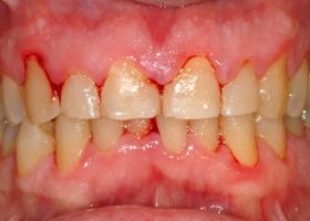 Gingivitis gum disease.