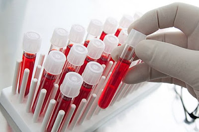bilimadamlarının yapay kan buluşu, filmlerde kan olarak çikolata sosu