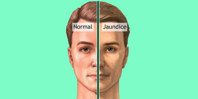 Jaundice : Symptoms Diagnosis Treatment