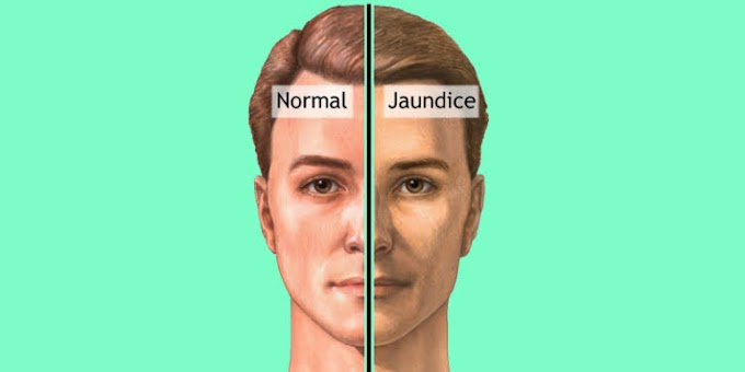Jaundice : Causes , Symptoms , Diagnosis , Treatment : MDLifeIndia