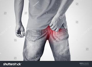 बवासीर का इलाज ( Treatment of hemorrhoids ) करने के लिए 5 प्रभावी कदम