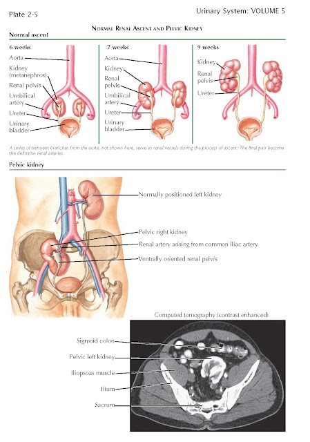 Renal Ascent,Normal Renal Ascent, Renal Ectopia, Pelvic Kidney, Thoracic Kidney, Crossed Renal Ectopia,