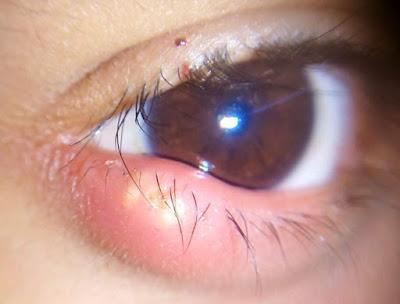 Best 7 Easy Ways To Eliminate Pimples on eyelid