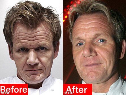 Chatter Busy: Gordon Ramsay Surgery  Gordon Ramsay Botox