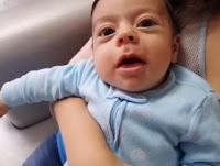 Dil bağı ameliyatı sonrası - Dudak bağı ameliyatı - Bebeklerde dudak bağının belirtileri - Bebeklerde dil bağının belirtileri - Bebeklerde dudak bağı tedavisi - Bebeklerde dil bağı tedavisi