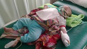 Diduga Akibat Asap Karhutla, Seorang Bayi Meninggal di Palembang