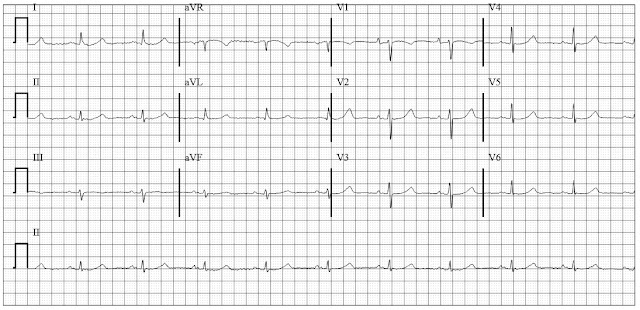 ECG of prolong QT and left atrial enlargement